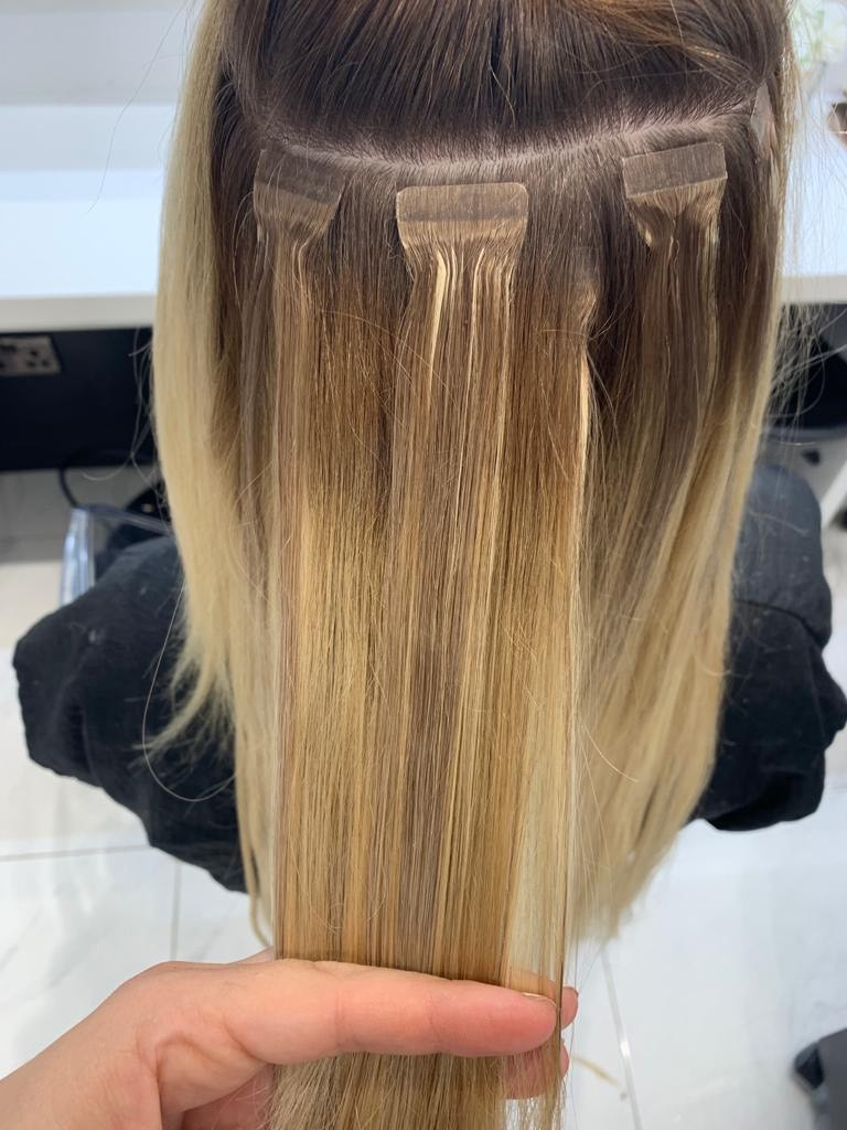 laser hair treatment London